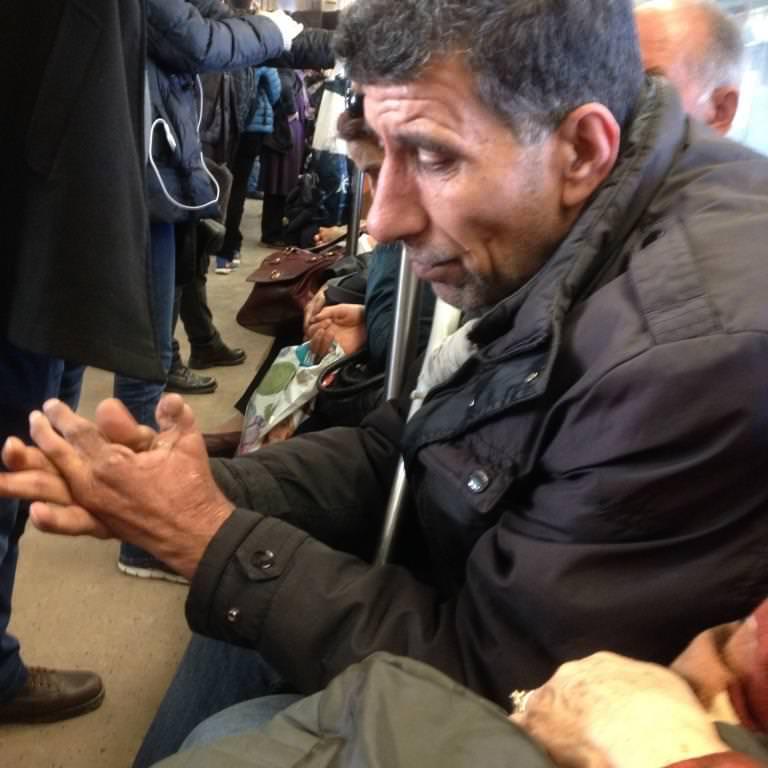Asitle Elleri Ayakları Yakılmış Bir Irak'lı Türkmen