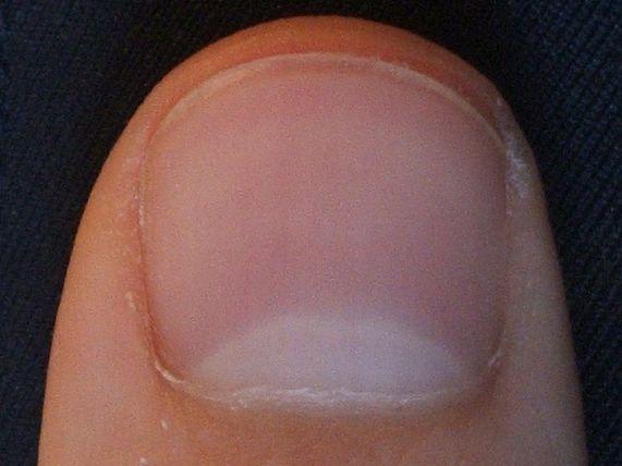 Vertical Nail Ridges Thyroid Awesome Nail