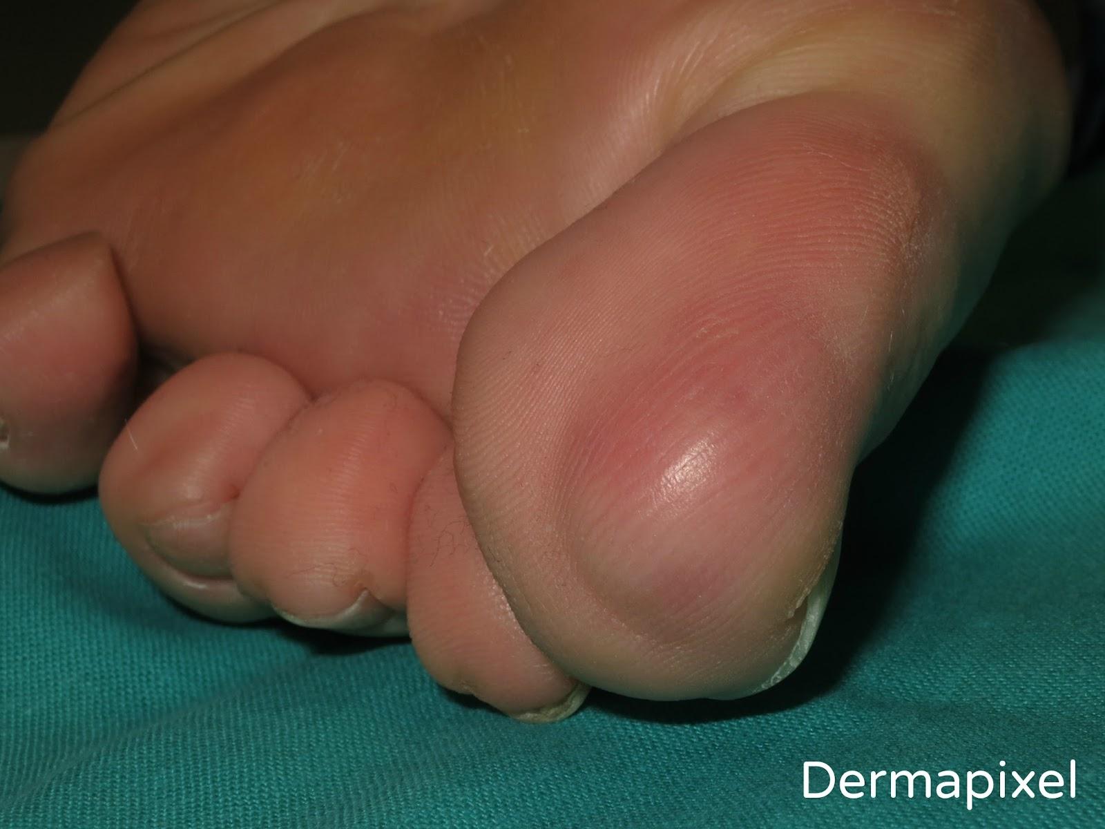 Como quitar las bolitas de los dedos de los pies