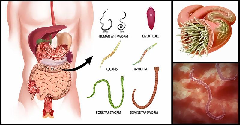 паразиты и простатита