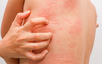 allergy treatment homeopathy in chennai