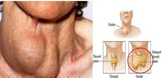 Gejala & pengobatan penyakit gondok nadi http://www.udan.name