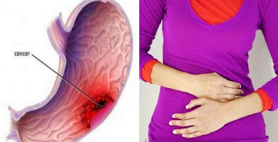 #Malignancy In The #Stomach #Develops #Silently. These Are The First #Signs! It Is #Important That You Be #Attentive!