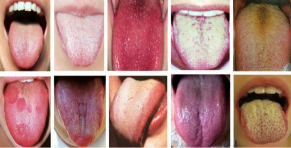 Срочно проверьте ваш цвет языка, который расскажет все о состоянии здоровья