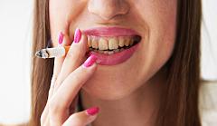 Smoking Causes Yellow Teeth