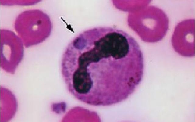 Infection Landscapes Ehrlichiosis