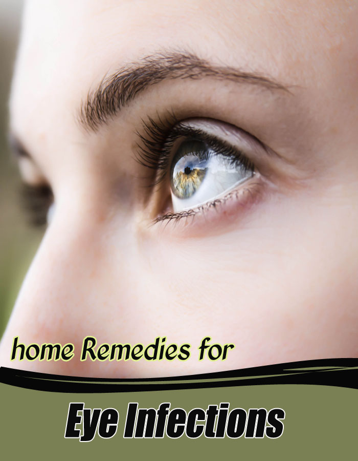 Home Remedies for Eye Infections