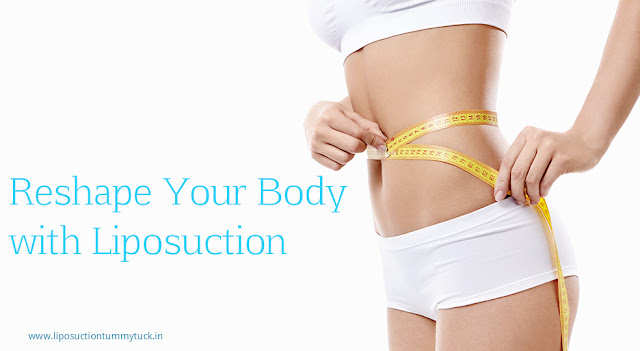 Liposuction Surgeon in Mumbai