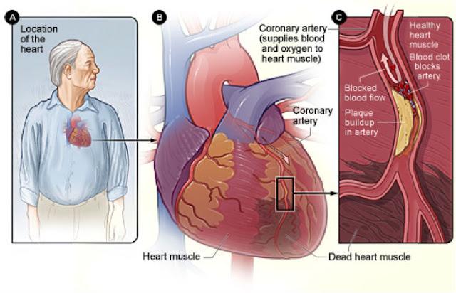 Sakit dada berpunca daripada masalah kardio-pulmonari adalah lebih serius.