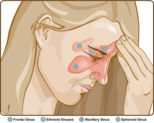 What home remedies can relieve sinus pressure and what is the standpoint for sinus pressure?