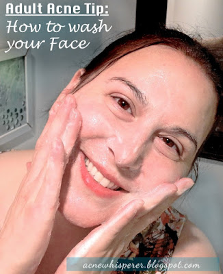 Adult Acne Tip from AcneWhisperer TV: How to Wash Your Face, on the Acne Whisperer Blog.