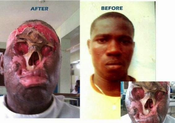 Dear Nigerian Celebs, Biko Help Seyi Oguntade-5673