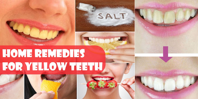 How To Get Rid Of Yellow Teeth By Using 4 Home Remedies!