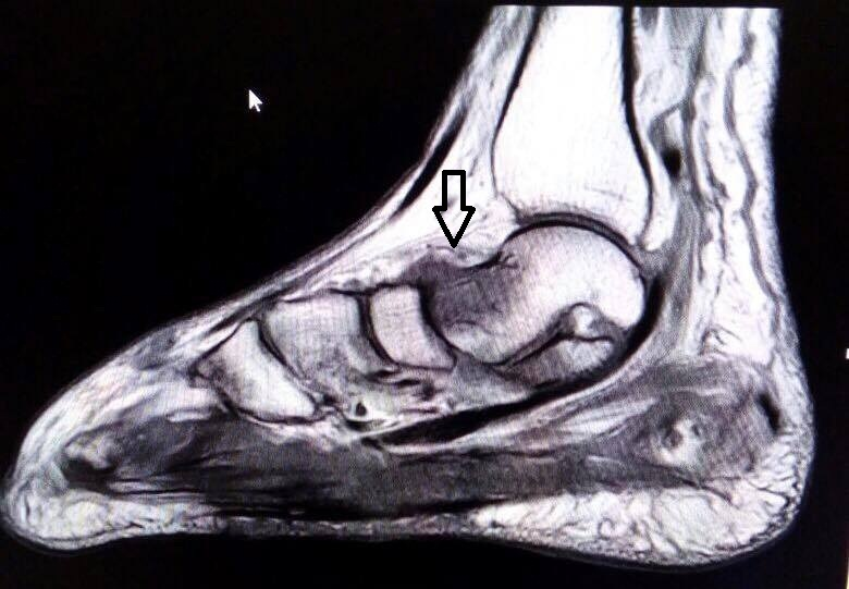 """mri for diagnosis of mycetoma or madura foot """"dot in circle"""" sign — a unique attribute of mycetoma foot on mri: a report of two  cases aggarwal a, gupta m, patel b n, patel s b abstract."""