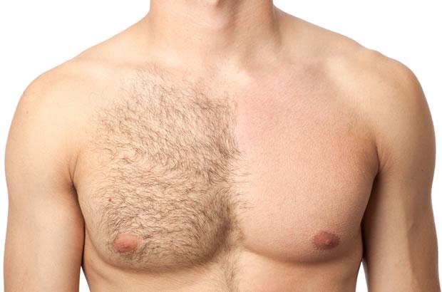 sobre depilação definitiva a laser masculina