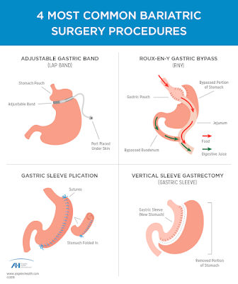 http://www.gastrosurgeoncochin.com/bariatric-weight-reduction-surgery.html