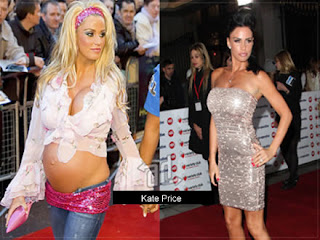 antes y despues del embarazo Kate Price