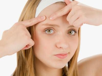 Como combatir el Acné, Remedio Natural para combatir el acné