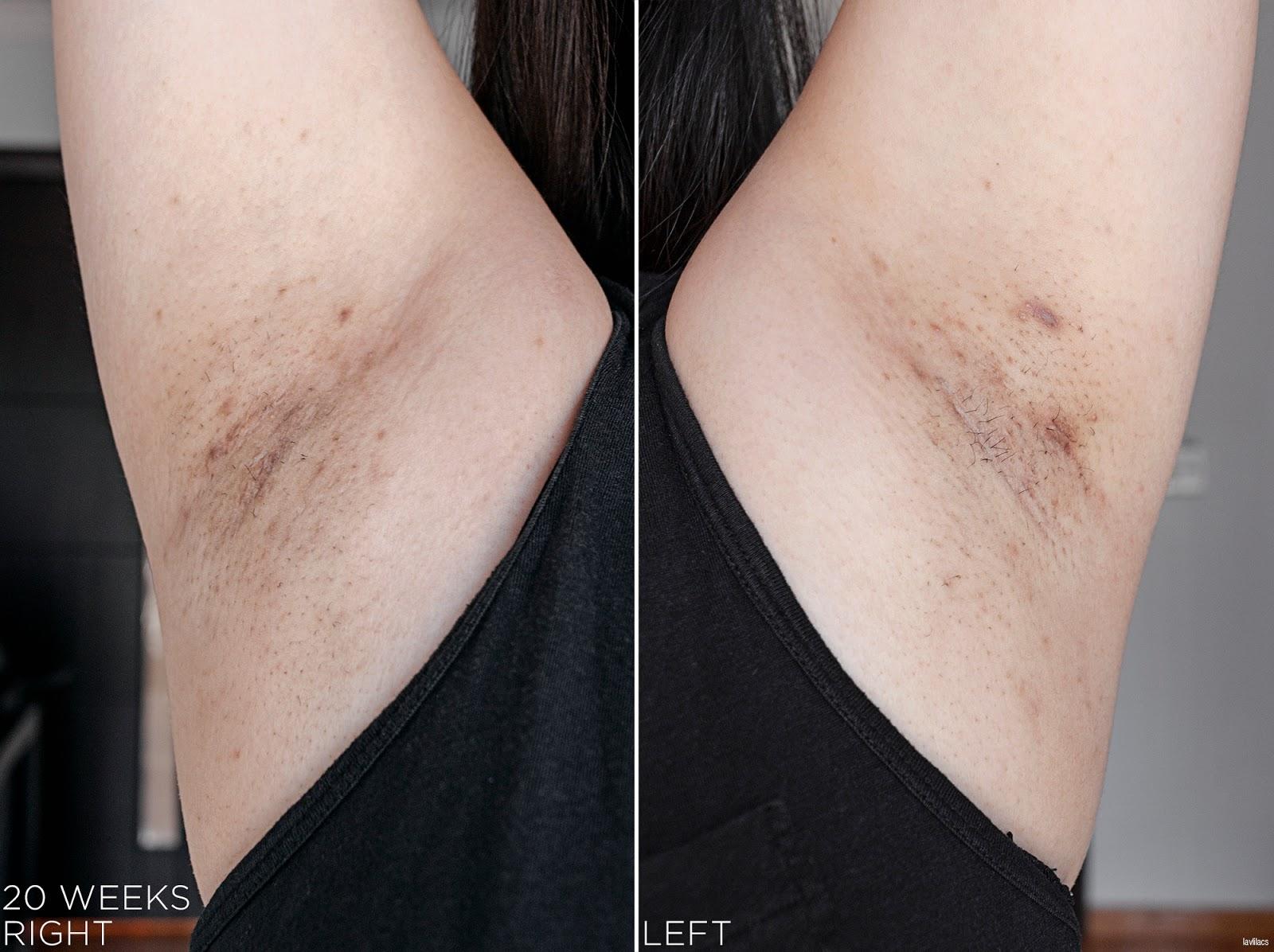 tria Hair Removal Laser Armpits Hair 20 Weeks