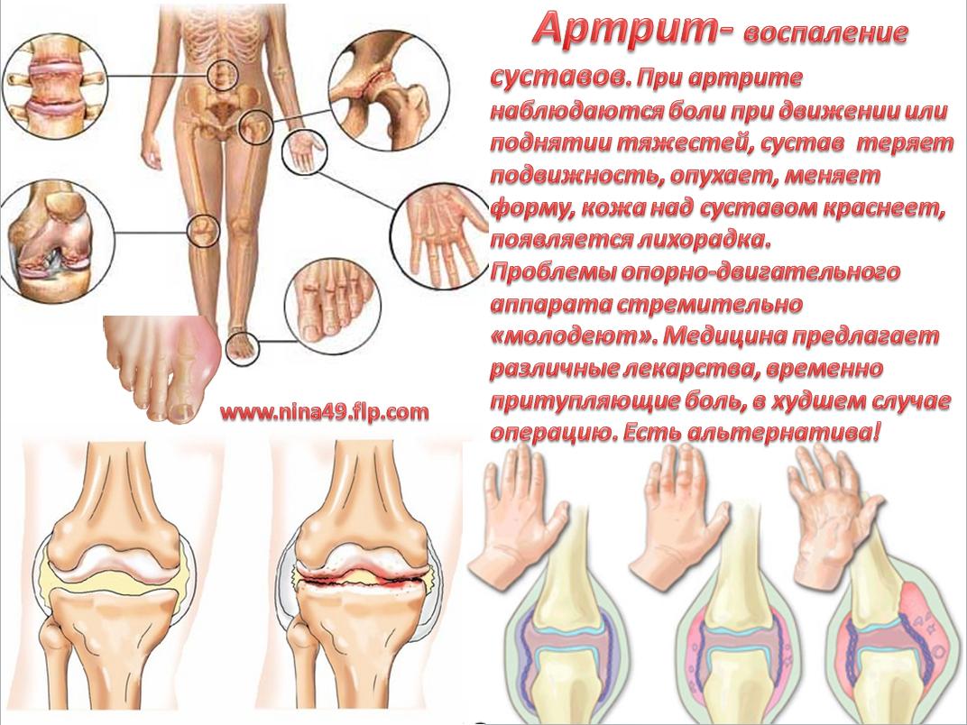 Алоэ при артрите суставов боли в суставах при раке легких