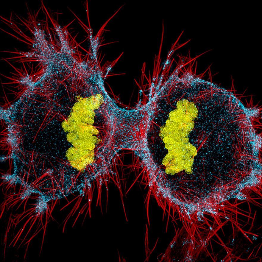 2016 Nikon Macro Photo Contest Winners Show The World Like You've Never Seen Before - Twelfth Place. Human Hela Cell Undergoing Cell Division