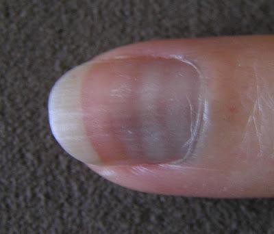 que dicen tus uñas sobre tu salud