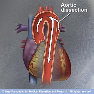 aortic aneurysms in young adults
