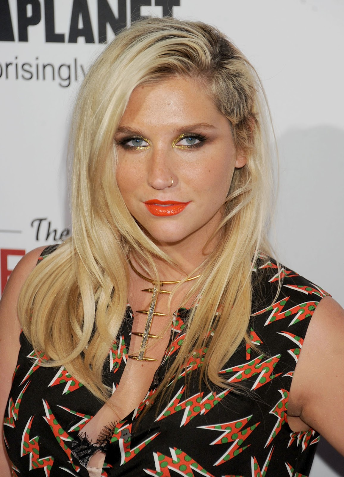 Kesha Thanks Her Supporters in an Emotional Instagram Post