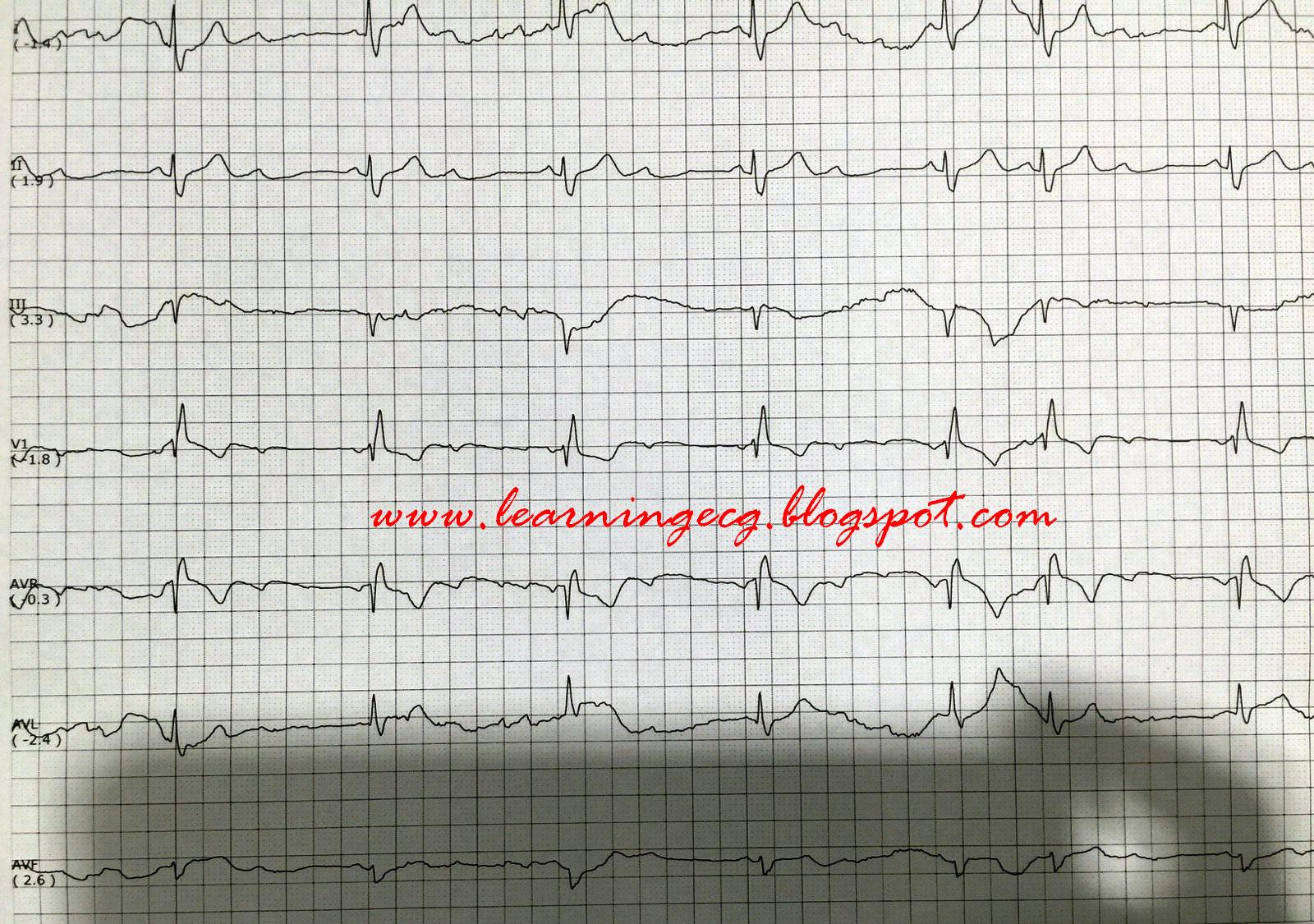 ECG Rhythms: Sinus rhythm, 2:1 AV block due to Mobitz II