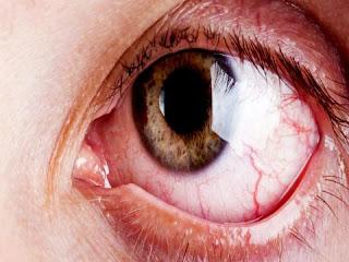 Điều trị đau mắt đỏ như thế nào hiệu quả nhất