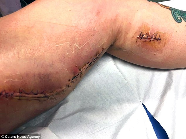 Woman Is A Few Hours Away From Death After Flesh-eating Disease Creates a Fist-sized Hole in her leg