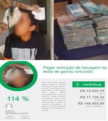 Menor infrator arrecada bolada na internet para tirar tatuagem de sua testa