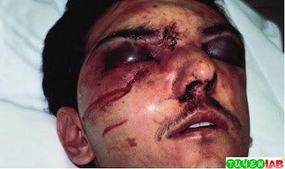 LeFort Facial Fractures
