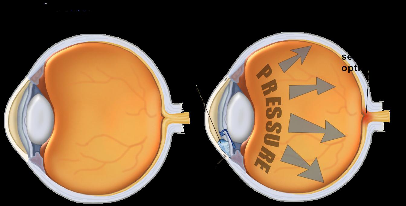 Obat Herbal Penyakit Mata Glaukoma