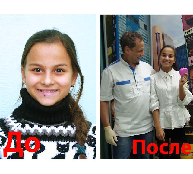 Лицо до и после раннего ортодонтического лечения