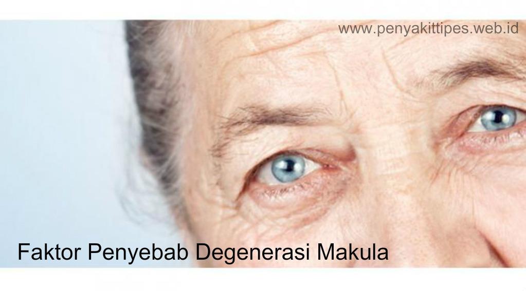 Faktor Penyebab Degenerasi Makula