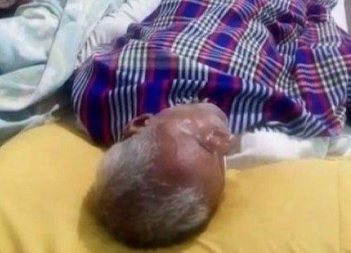 Patient Treated Alongside Dead Body