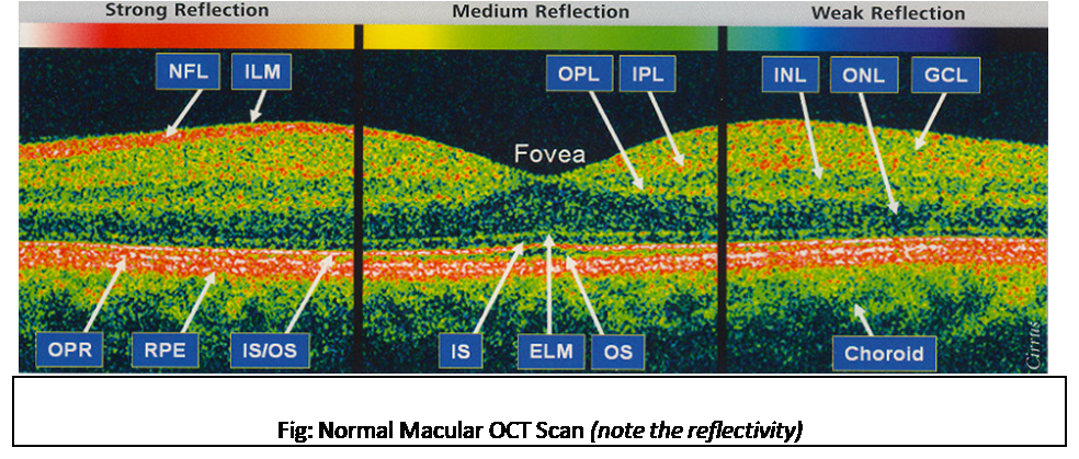 Normal macular OCT scan