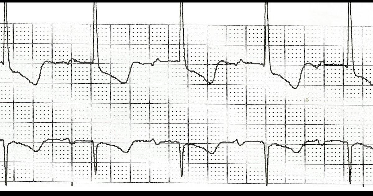 Float Nurse: Practice EKG Rhythm Strips 164