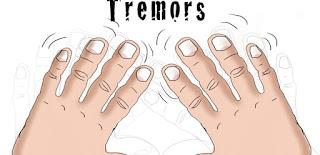 tremor-www.healthonte25.com