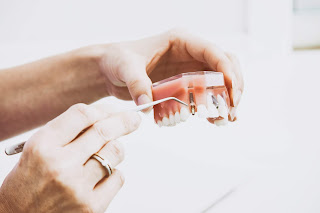 Process for a dental implant