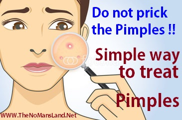 Simple Way To Treat Pimples