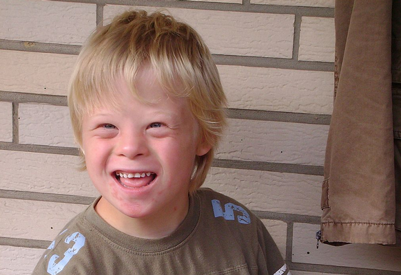 is a birth defect that is associated with mental retardation Down Syndrome Symptoms : What Is Down Syndrome?