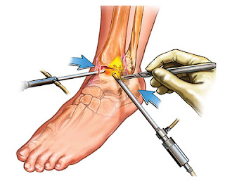 http://jointsreplacementindia.com/ankle-arthroscopy.html