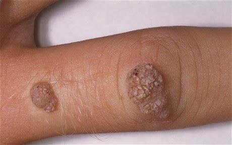 Natural Way To Cure Warts
