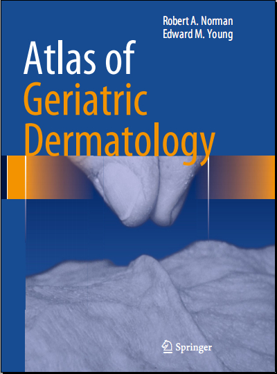 Atlas of Geriatric Dermatology 2013 [PDF][Dr.Carson]