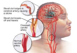 penyebab stroke herbal nasa