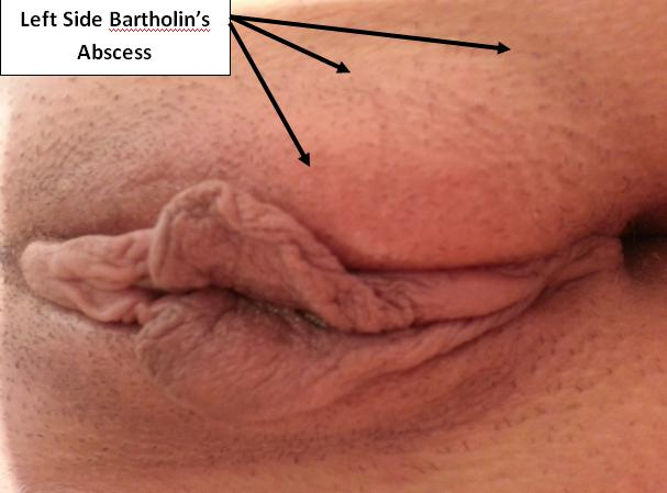 What sexually transmitted infections cause bartholin cyst