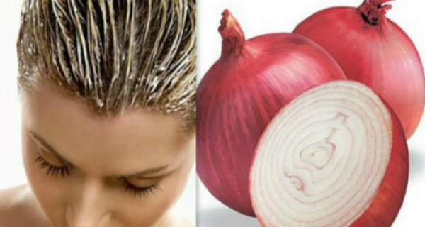 ONION WITH THIS RECIPE YOUR HAIR WILL GROW LIKE CRAZY! 100% WORKING
