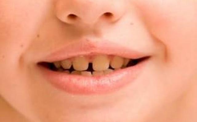 وصفة منزلية للتخلص من صفرة الأسنان